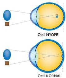 Définition de la myopie