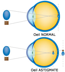 Définition astigmatisme