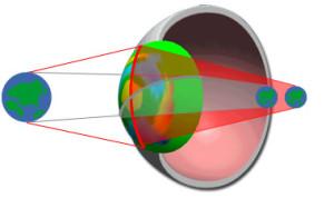 astigmate et hypermétrope