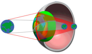astigmate et myope